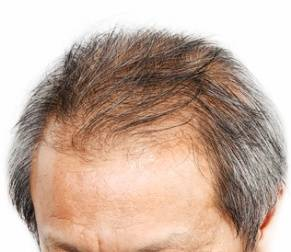 Hair Loss From Mold Exposure
