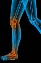 Mycotoxins and Joint Pain